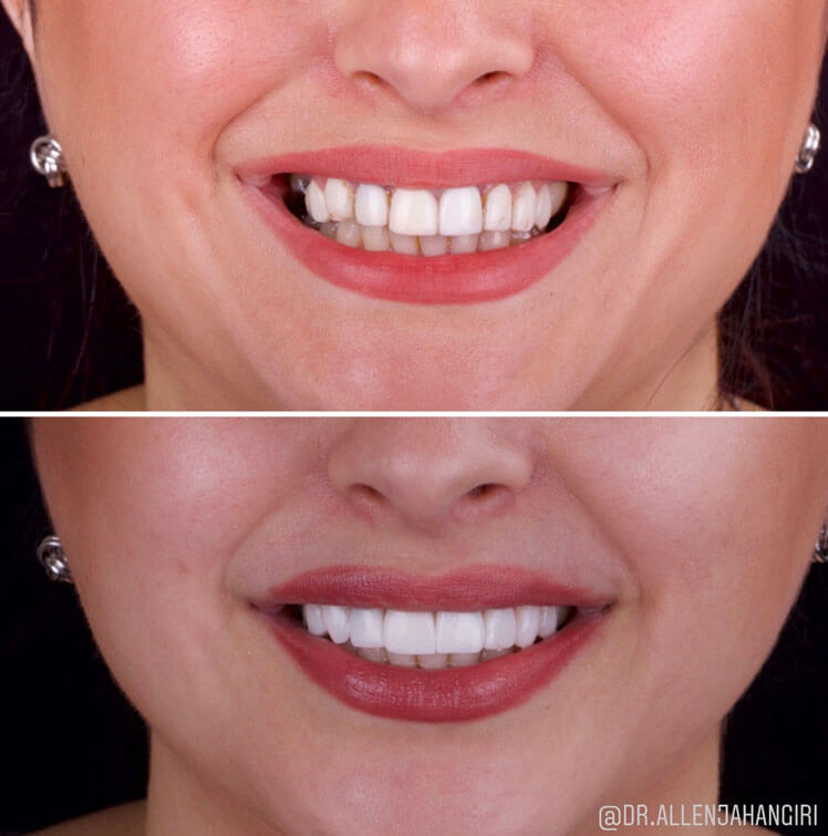 Cosmetic Composite Restoration